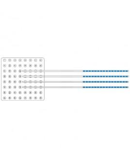 Additional Option Subdural Electrodes
